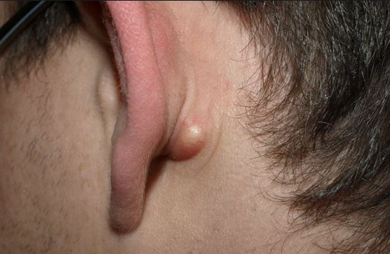 glomus tumour in ear