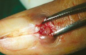 glomus-tumor-in-finger